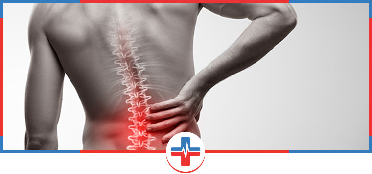 Back Sprains Treatment Questions and Answers